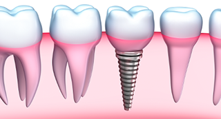 What to consider when considering dental implants