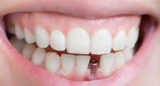 Talking Teeth: Why dental implants are better for your oral health