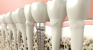 Dental Implants: What Can Go Wrong?