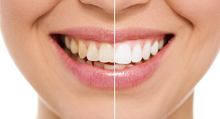 Are You Happy With The Colour Of Your Teeth?