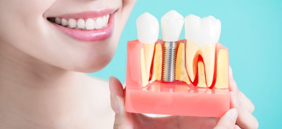 5 Tips to remember when adjusting to dental implants